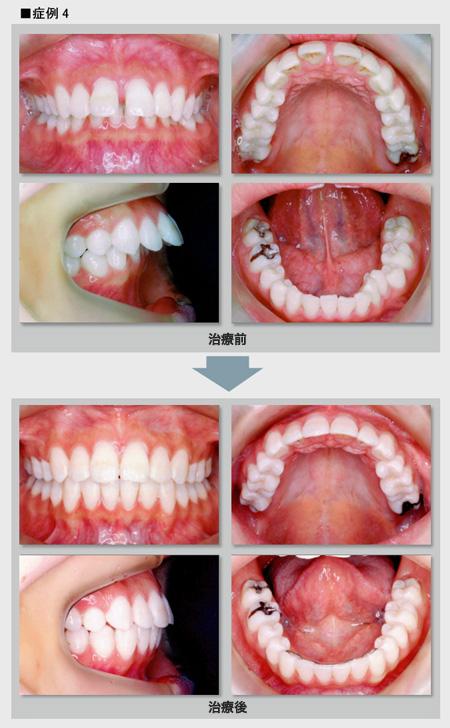 症例4 出っ歯の症例