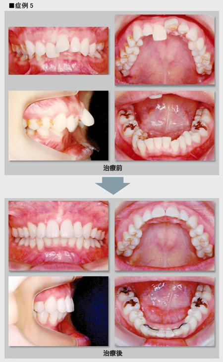 症例5 出っ歯で噛み合わせの深い症例